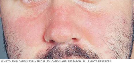 Seborrheic dermatitis on the face