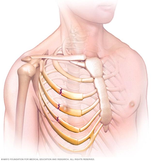Illustration showing broken ribs