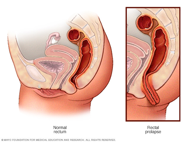 Normal rectum and rectal prolapse