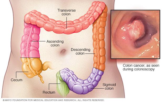 Colon cancer locations