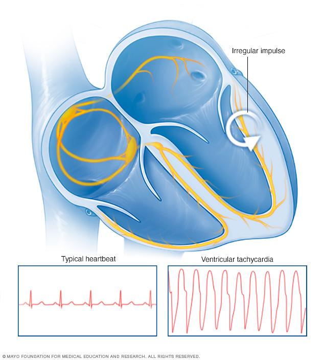 Ventricular tachycardia heartbeat