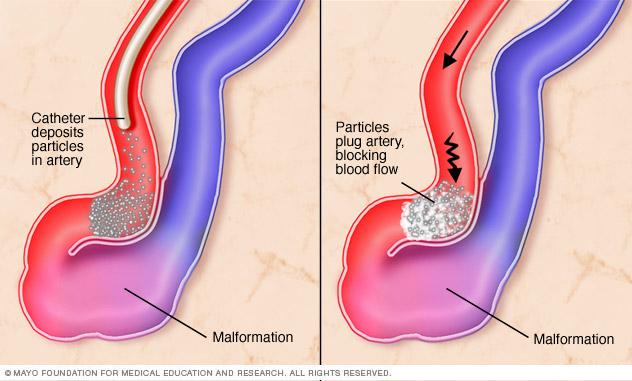 Close-up of endovascular embolization