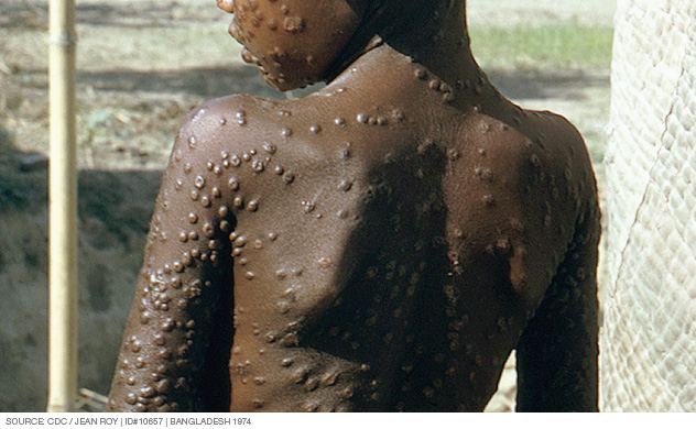 Smallpox pustules covering the trunk of the body