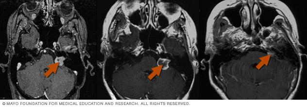 Gamma Knife radiosurgery results