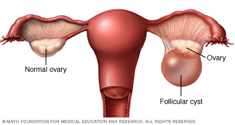 Follicular cyst on ovary