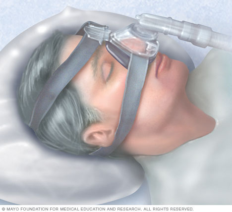 Continuous positive airway pressure (CPAP) mask