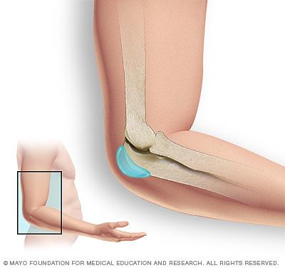 Elbow bursa