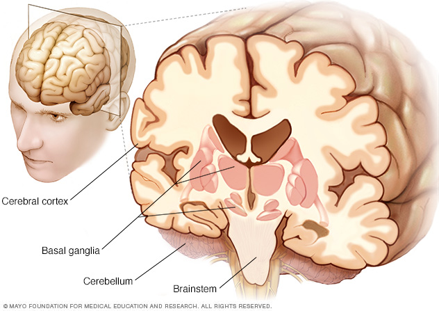 Affected parts of the brain