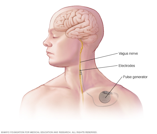 Device placement in vagus nerve stimulation
