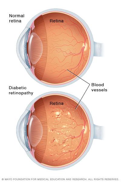 Illustration showing severe nonproliferative diabetic retinopathy
