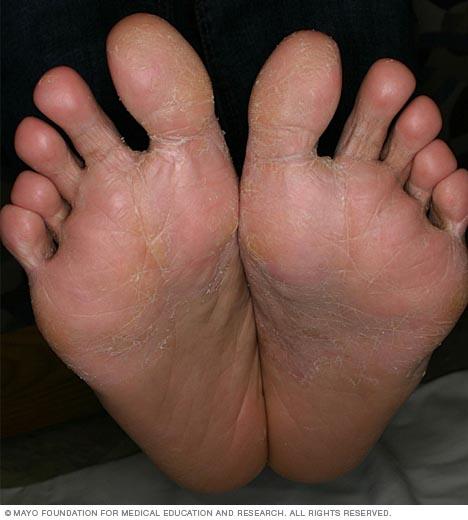 Photo showing dyshidrosis