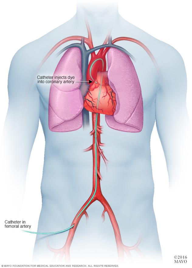Catheterization for a coronary angiogram