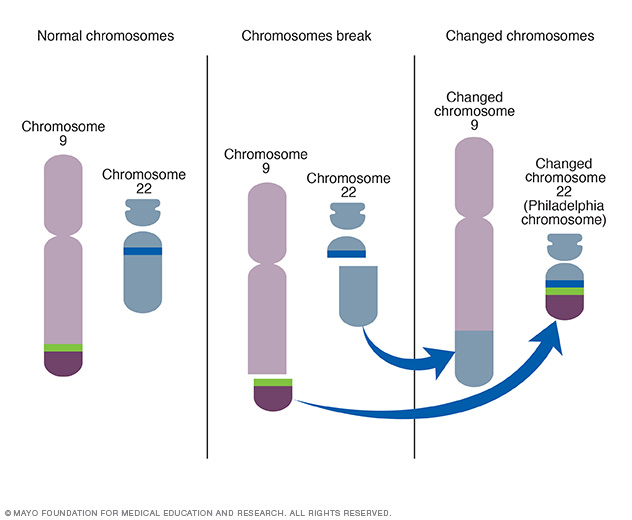 Creation of Philadelphia chromosome
