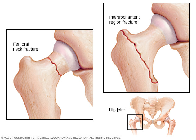 The two most common types of hip fractures