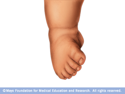 Baby with clubfoot