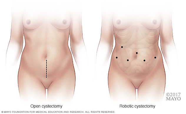 Where incisions are made in open vs. robotic cystectomy