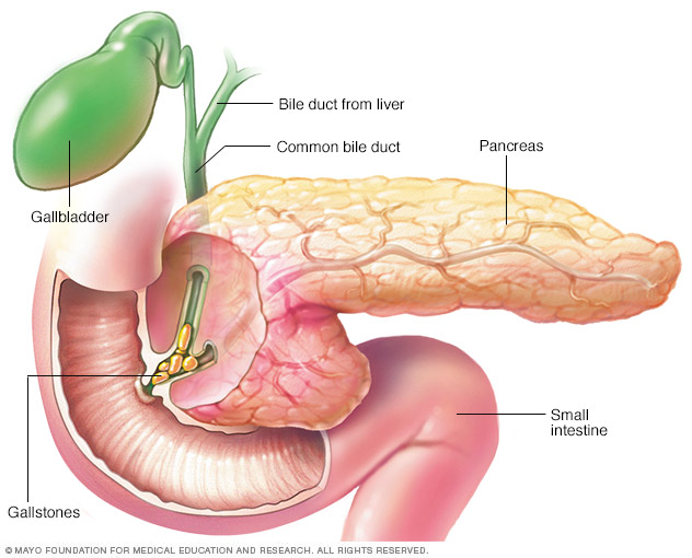 Pancreatitis caused by gallstones