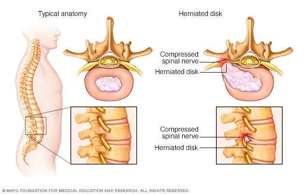 Pinched nerve in spine