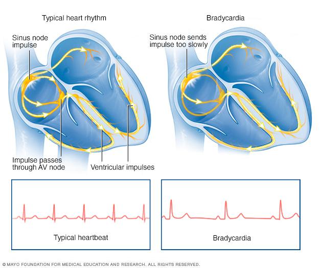 Bradycardia