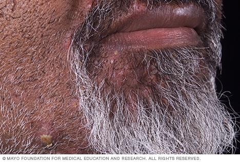 Image of pseudofolliculitis barbae