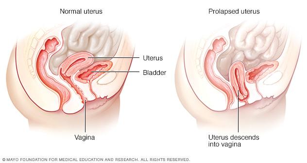 Normal uterus and prolapsed uterus