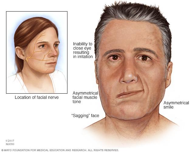 Facial weakness