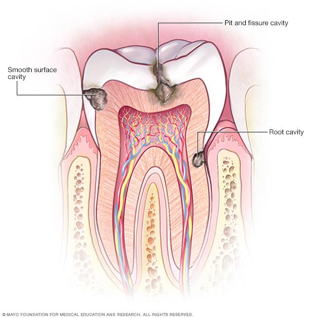 Types of cavities