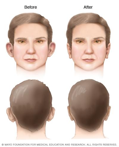 Illustration of otoplasty results