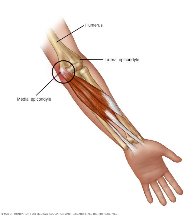 Illustration of golfer's elbow