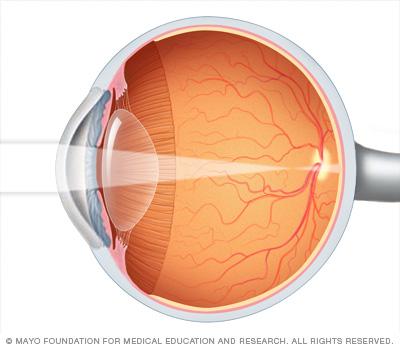 Nearsightedness (myopia)