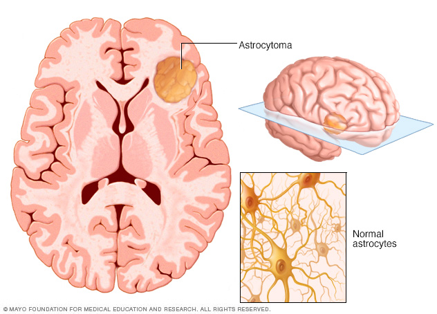 A brain with an astrocytoma brain tumor and normal astrocyte cells