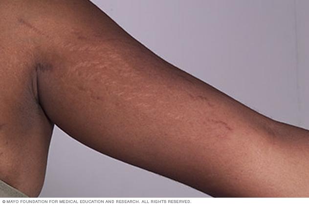 Stretch marks on arm