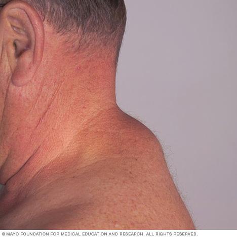 Image of a lipoma