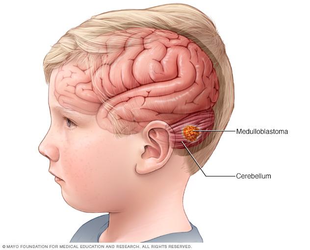 Child with a medulloblastoma brain tumor