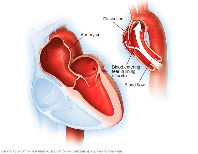 Aortic dissection and aortic aneurysm