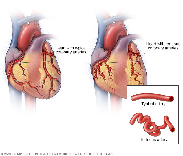 A normal heart and a heart with tortuous arteries