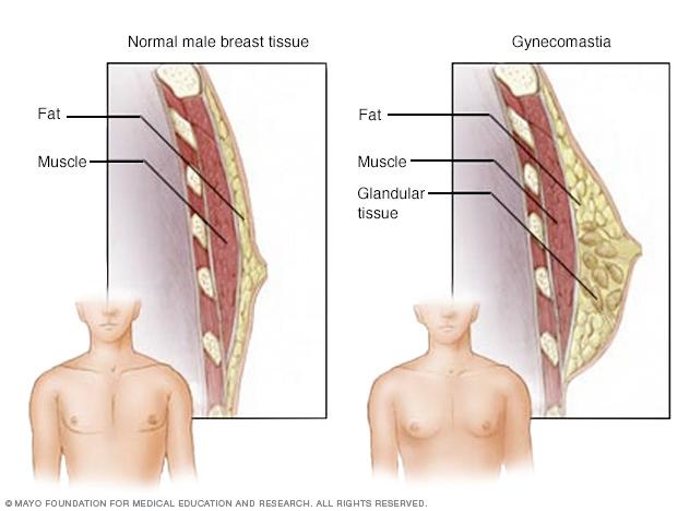 Enlarged breasts in men (gynecomastia)