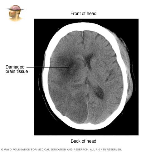 Brain tissue damaged by stroke
