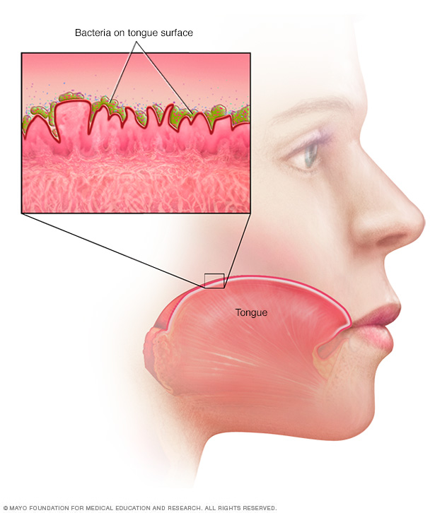 Bacteria on the tongue surface