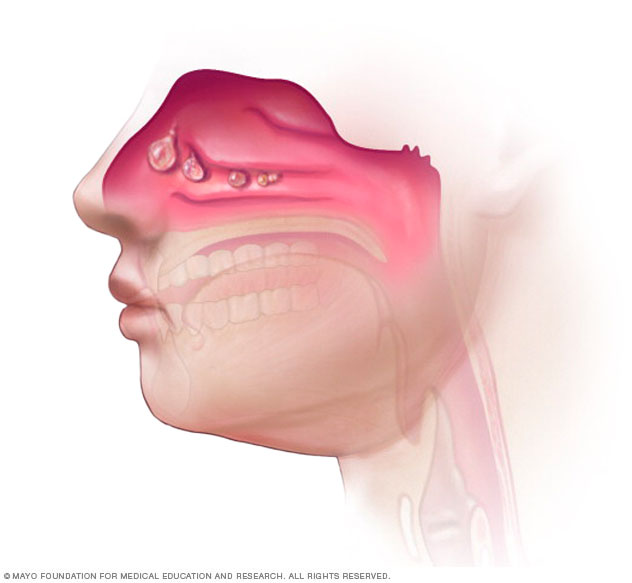 Nasal polyps in the nose and sinuses