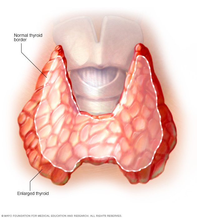 Enlarged thyroid associated with Graves' disease