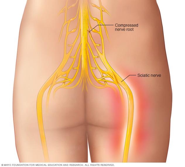 Illustration showing sciatic nerve