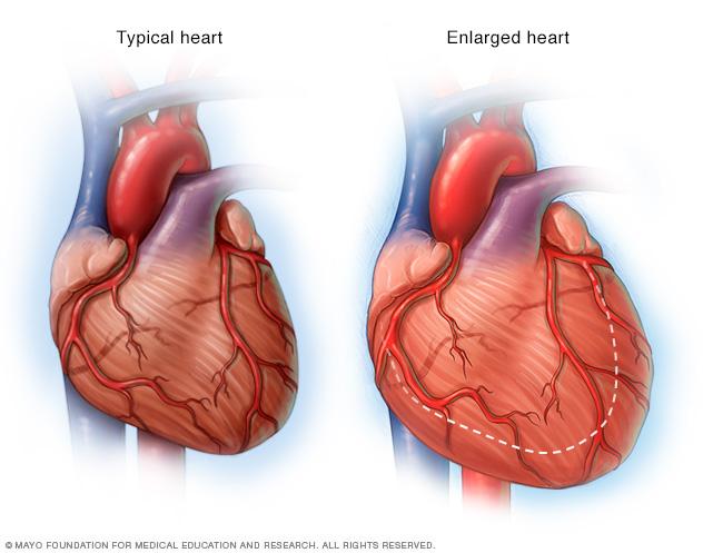 An enlarged heart