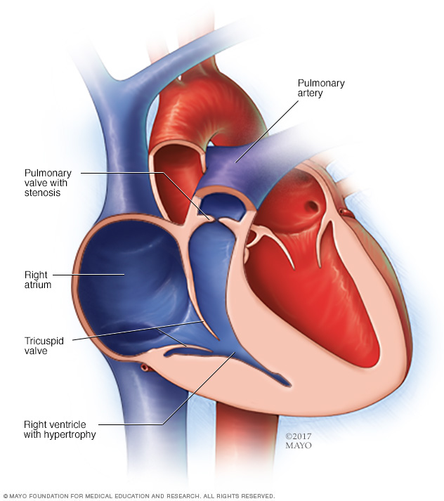 Illustration showing pulmonary stenosis