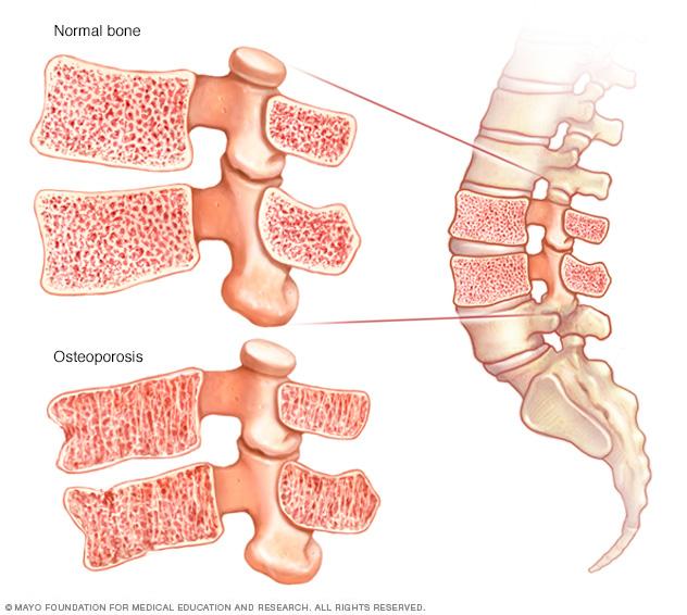 Normal bone and weakened bone