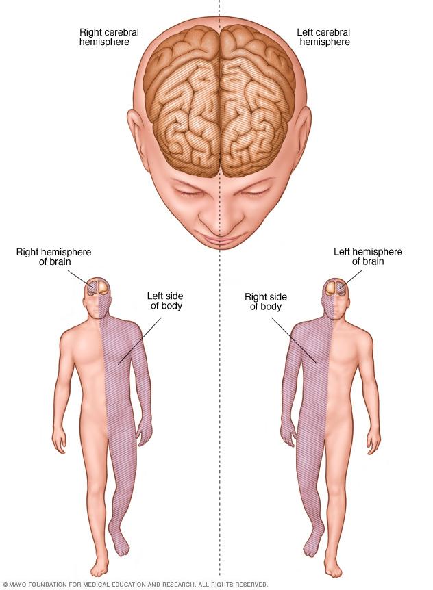 Brain hemisphere connections