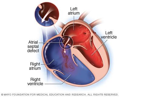 An atrial septal defect