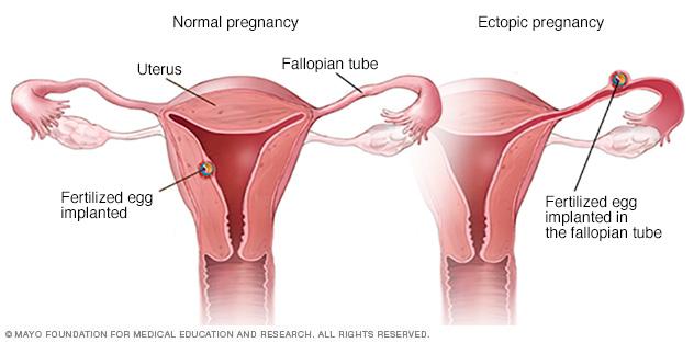 Normal vs. ectopic pregnancy
