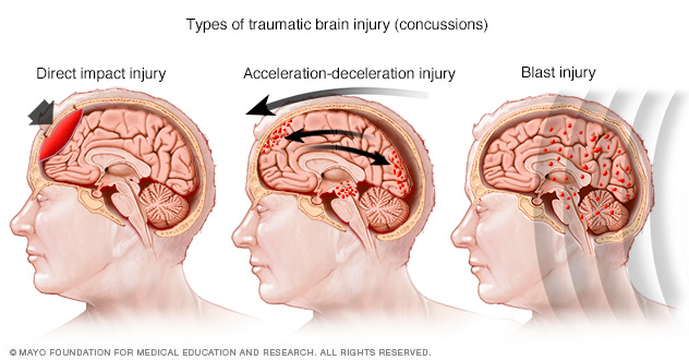 Damage in different areas of the brain based on injury type