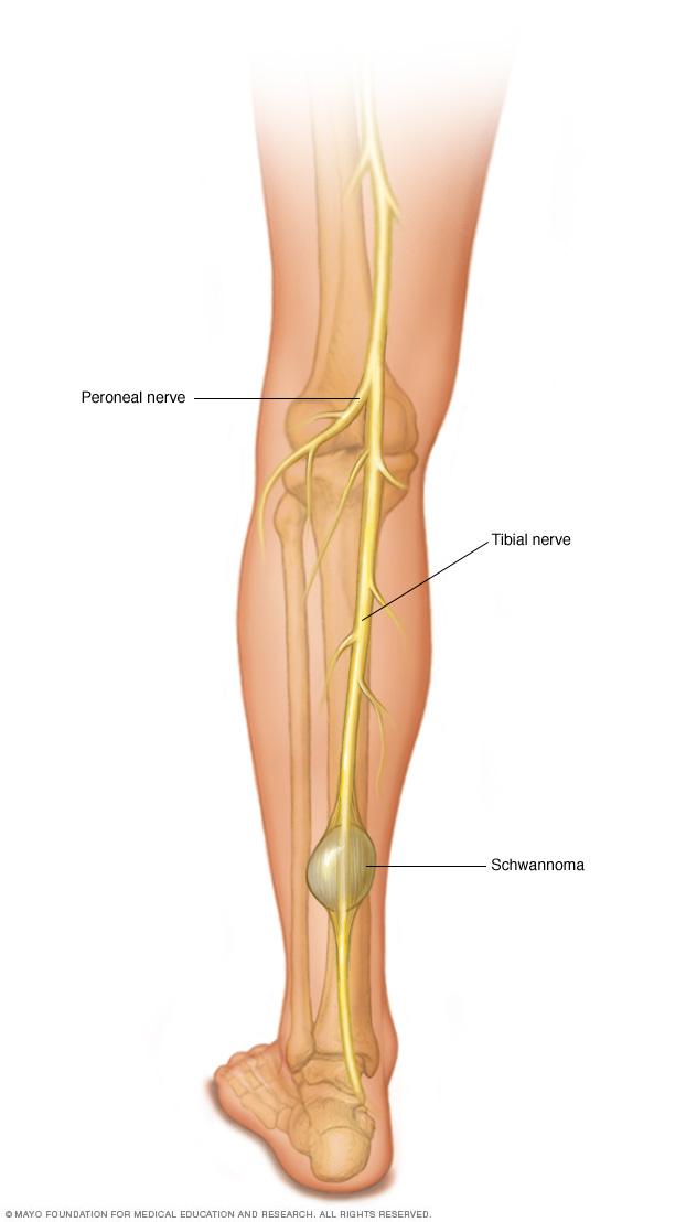 Schwannoma in the leg
